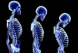 Calcium intake and bone density: not really related.