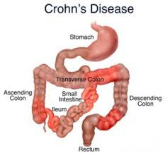 Testimonial: Crohn's Disease