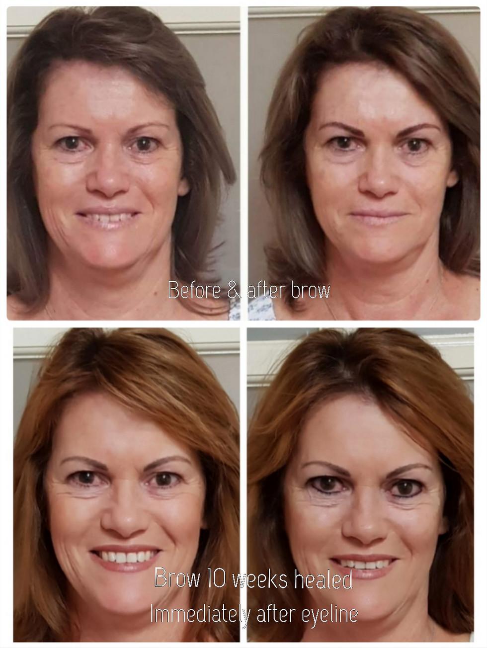 Stunning Transformation
