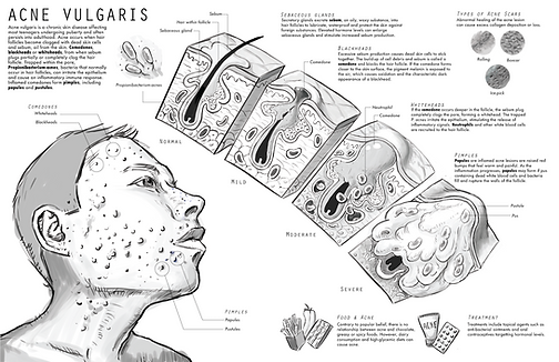 Sketch of acne pathology illustration