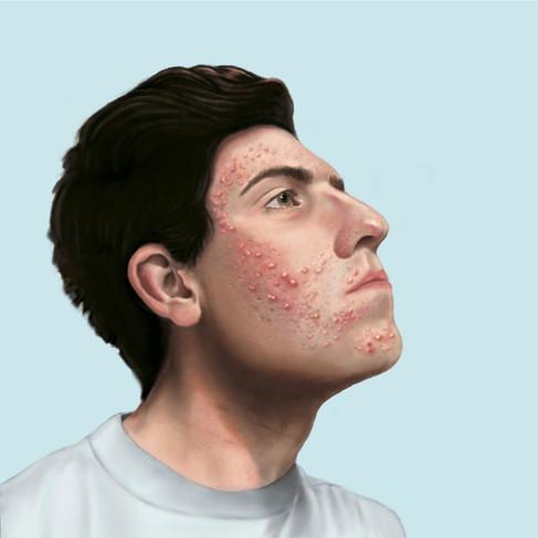 Pathology of Acne Vulgaris