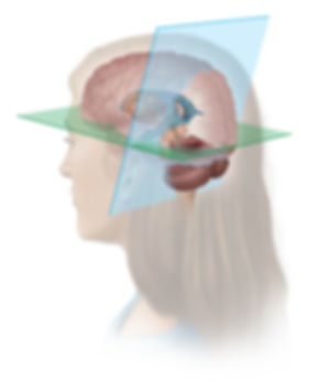 medical legal neuroanatomy photoshop painting