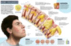 Editorial illustration of Acne Vulgaris Pathology