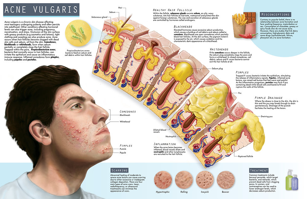 Editorial illustration of Acne Vulgaris Pathology