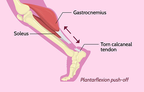 bernie calcaneal tendon injury
