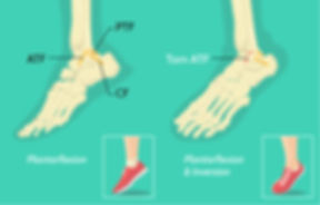 jenny ankle ligament injury