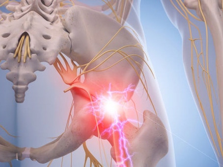 Sciatica - Back to Basics
