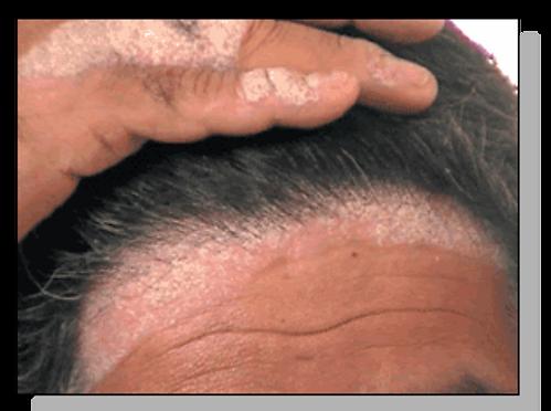 scalp%20psoriasis_edited.png