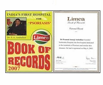 limca book of records.webp
