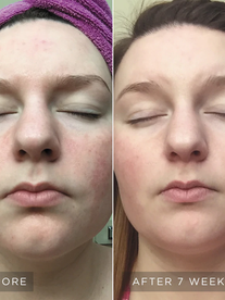 skincare-philosophy-visible-results-4-ve