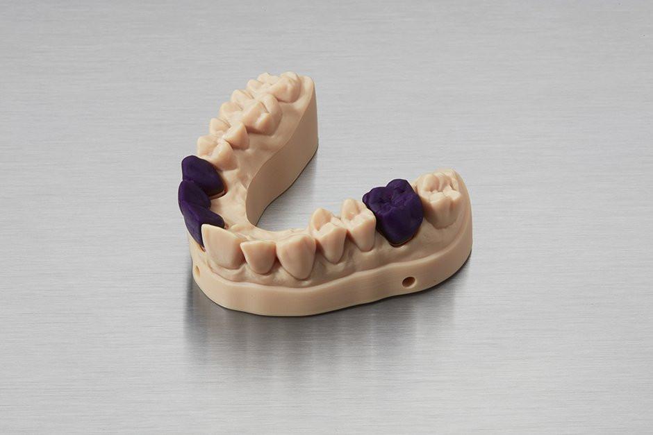 Мост и коронки напечатаны Castable Wax Resin, на диагностической модели, напечатанной в Model Resin.