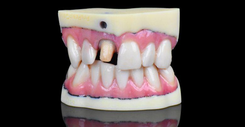Стоматологический 3D-принтер Stratasys J720 купить