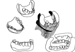 Teeth Casts, 2019