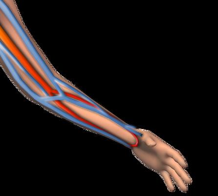 damaryolu sağlanması, hemodiyaliz