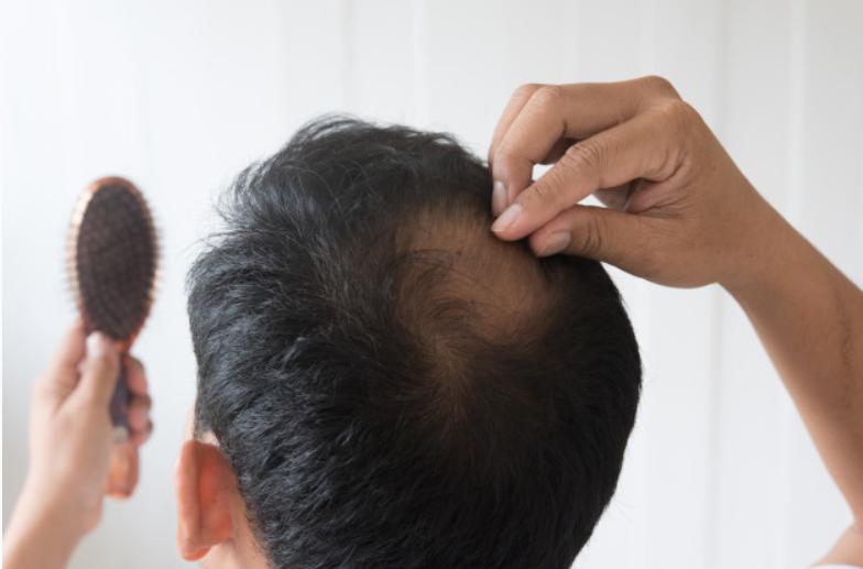 Male Enhance Thinning Hair Area