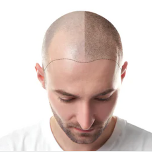 Half Hairline.PNG