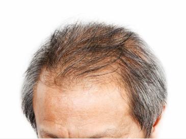 Male or Female- Enhance Crown