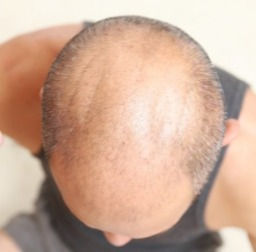Enhance Whole Crown with Custom Hairline