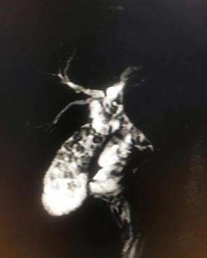 Caso interesante 4 radiologos cucuta