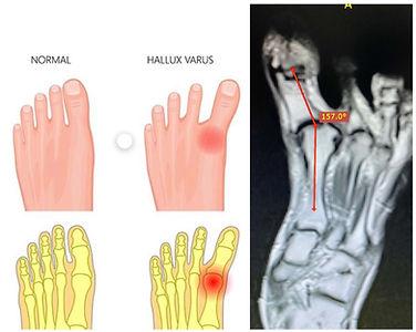 Caso interesante 8 radiologos cucuta