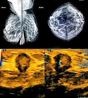 Caso interesante 6 radiologos cucuta