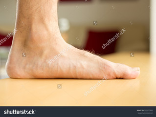 #11 - Fußprobleme: Der Senk/Plattfuß