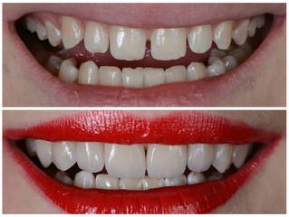 Ультратонкие керамические виниры! Преображение улыбки без обточки зубов!