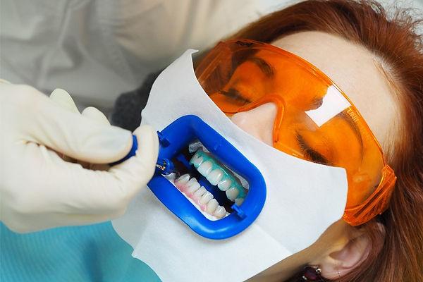 отбеливние зубов