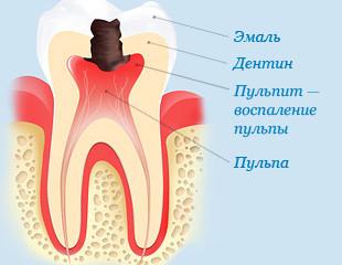 Пульпит! Удаление нерва в зубе!