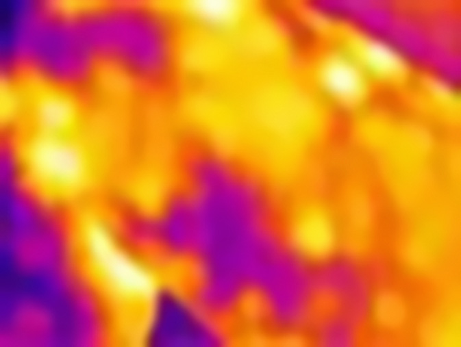 caméra thermographique cellulite