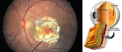 Degeneração Macular (DMRI)