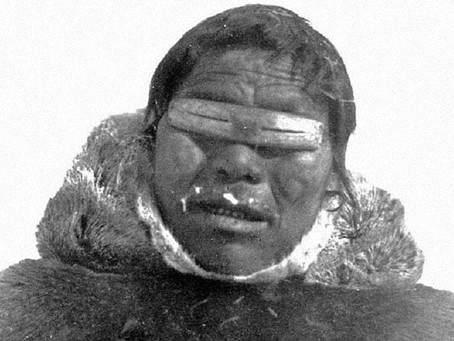 Were the Inuit Healthy?