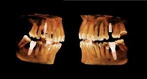 3D tomografia.jpg