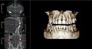 tomografiya.jpg