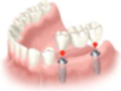 имплантация зубов в минске