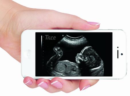 Digital Ultrasound Pictures (Sponsored)