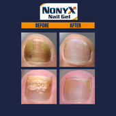 NONYX Before & After