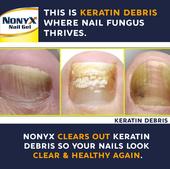 This is keratin debris where nail fungus thrives.