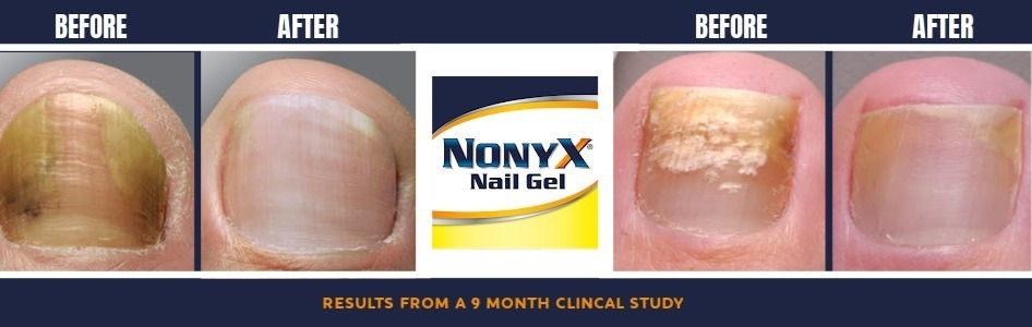 NONYX Nail Gel shows nails discolored before and after nails look clear and healthy-looking