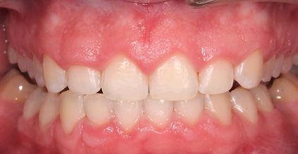 wybielanie zębów po