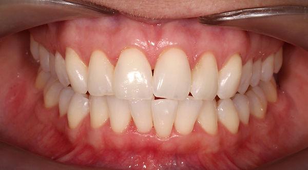 piaskowanie zębów bielsko-biała
