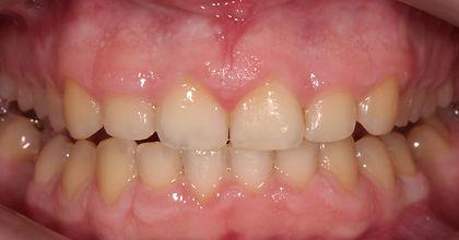 wybielanie zębów przed