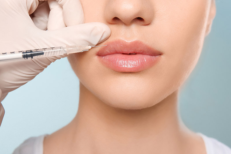 Fillers: See Description for Options