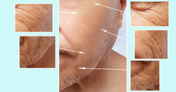PRAXIS Lepage - Aesthetics