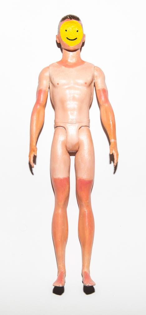 Sunburn Ken