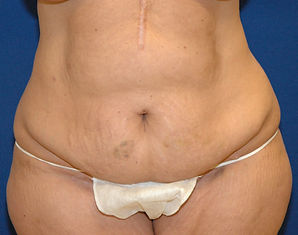 Abdominoplasty 3- Before- Front.jpg