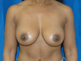 Breast Augmentation 1- After.jpg