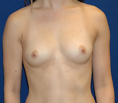 Breast Augmentation 2- Before.jpg