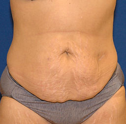 Abdominoplasty 2- Before- front.jpg