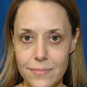 Blepharoplasty 1- After.jpg